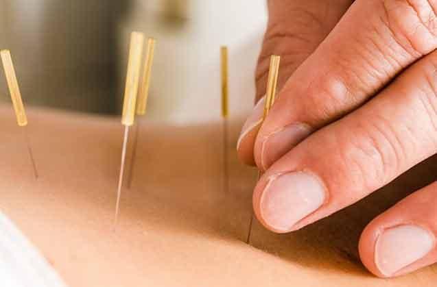 Akupunktur İğnesi