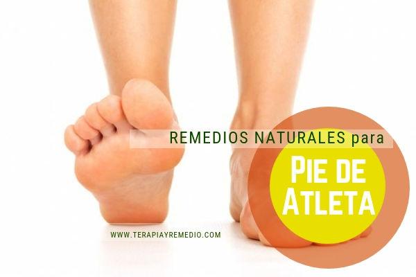 Remedios naturales para el pie de atleta o tiña pedis.