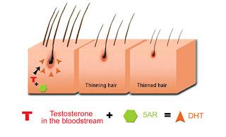 Minoxidil para tratamiento capilar: Caída de tipo androgenetica - Parte 1