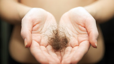 Hair Loss: Causes 13 & 15 Ways to Overcome It