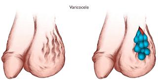 Obat Varikokel Alami varicocele