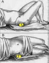AUTO- massagem de pontos dolorosos na dor no quadril