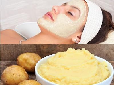 Mặt nạ trị tàn nhang từ khoai tây hiệu quả