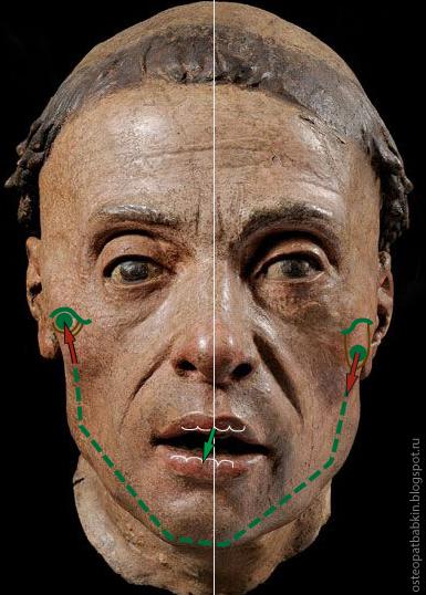 Дисфункция височно-нижнечелюстного сустава, смещение нижней челюсти при открытии рта