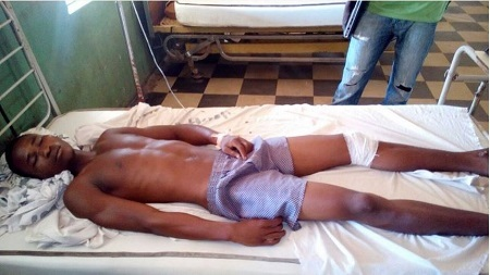 Young Man Beaten to Coma by Police in Adamawa (Photos)