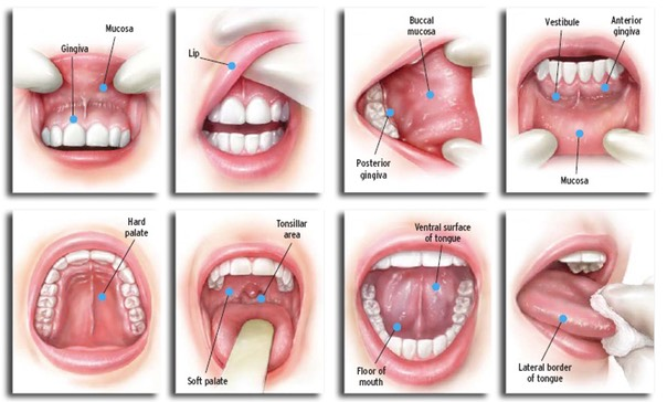 Oral Cancer Signs, Symptoms And Prevention