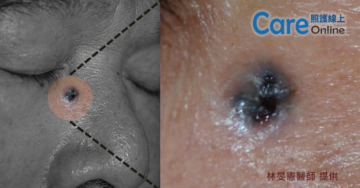 基底細胞癌是形狀對稱、邊緣規則、顏色均勻、生長緩慢的黑色突起物。