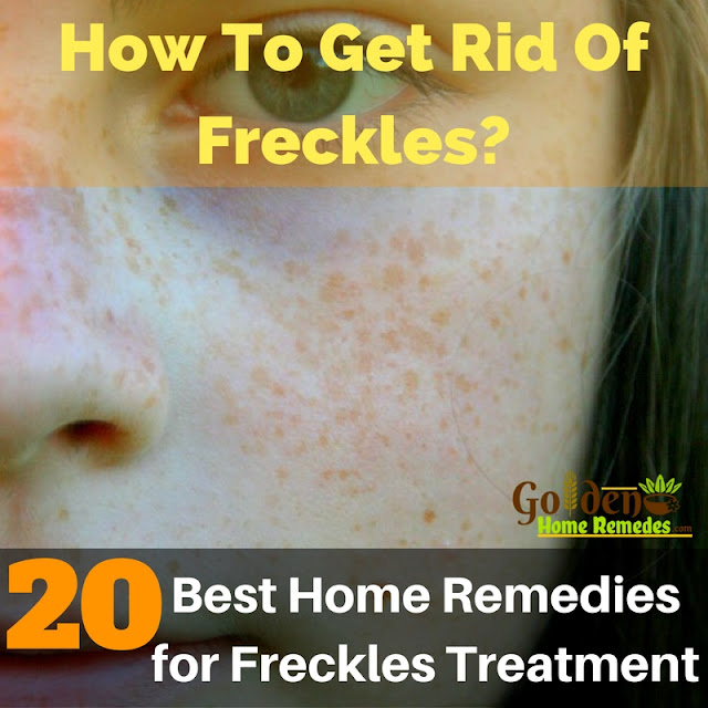 Home Remedies For Freckles, How To Get Rid Of Freckles, Freckles Treatment, How To Remove Freckles, Treatment For Freckles, Freckles Home Remedies, Remedies For Freckles, How To Treat Freckles, Freckles Remedies,
