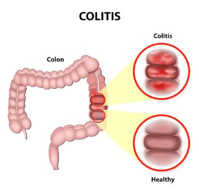 http://surgicalgastro.com/ulcerative-colitis/