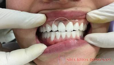 so sánh răng sứ kim loại và răng sứ không kim loại -5