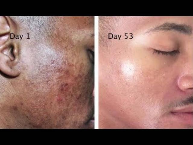 تخلص من البقع وآثار الحبوب على وجهك بمادتين فقط! طريقة سهلة وبسيطة للحصول على البشرة التي تحلم بها...