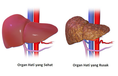 Khasiat Daun Kelor untuk Kesehatan Organ Hati