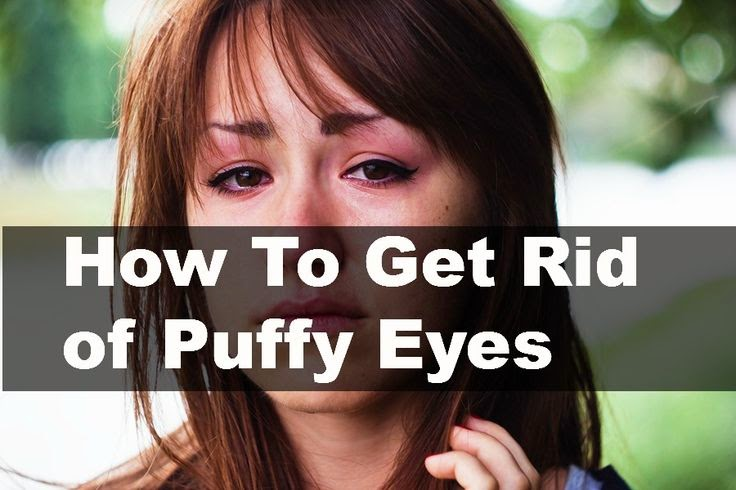 How to Get Rid of Puffy Eyes | Ways to Cure Puffy Eyes