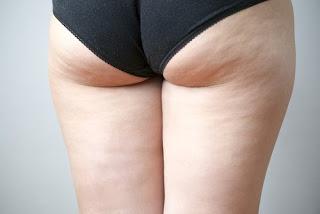 Des habitudes contre la cellulite