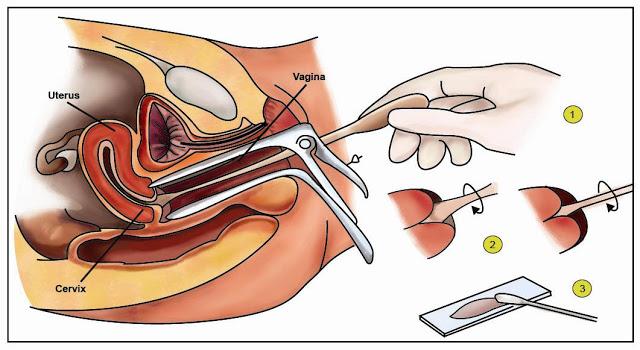 Info Penting Bagi Para Wanita yang Sudah Menikah! Inilah Alasannya Kenapa Kamu dianjurkan untuk Melakukan Pap Smear!