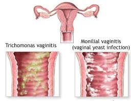 Apa itu infeksi jamur vagina? (Vaginal Yeast Infection)