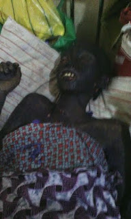 Graphic: More photos of the girl whose face was disfigured after taking Septrin tablets