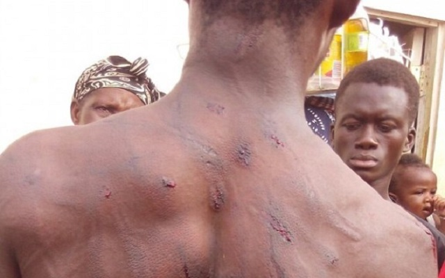 Driver badly beaten by KMA officials
