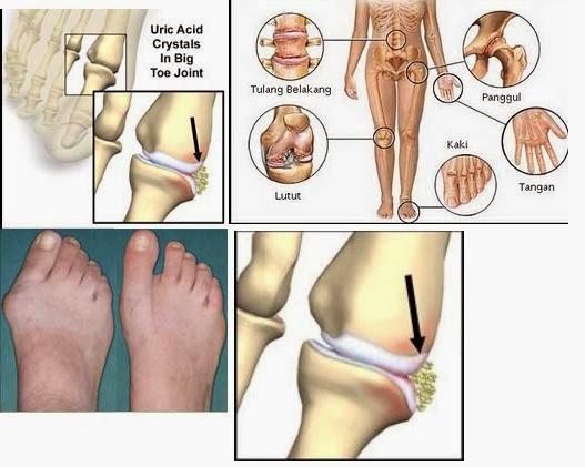 Akibat sakit lutut sebelah kiri
