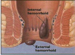 Nanda Nursing Diagnoses: 4 Nursing Diagnosis for Hemorrhoids