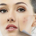 sistem menghilangkan kukul di wajah dengan kencang