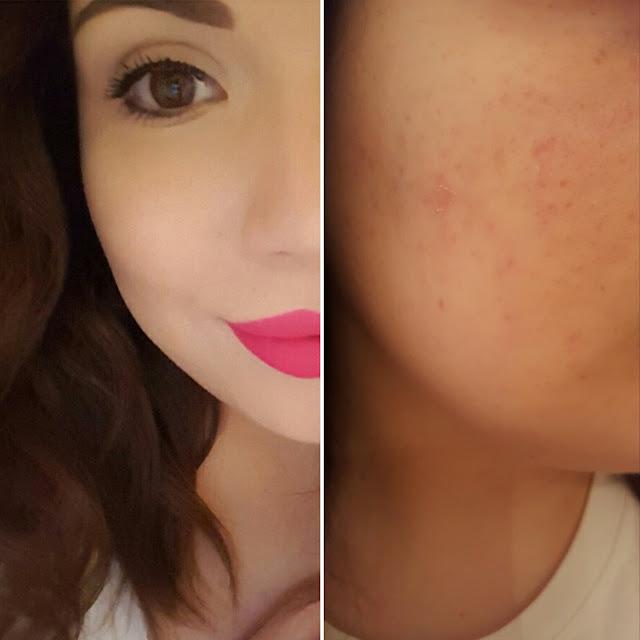 come coprire macchie acne makeup