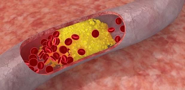 Resultado de imagen de hipercolesterolemia