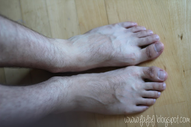 Kocostar Foot Therapy Male Foot Before