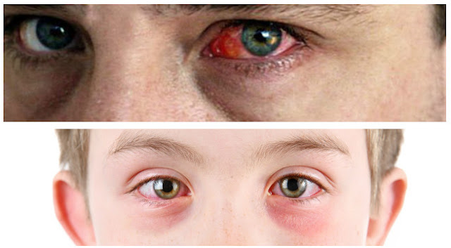 Tuberculosis eye symptoms, signs and treatment