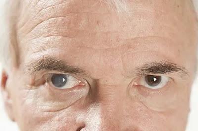 merupakan kondisi dimana lensa mata keruh dan buram Mengetahui Katarak dan cara Pengobatan Katarak