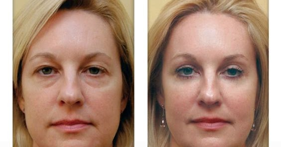 how to get rid of bags under eyes female