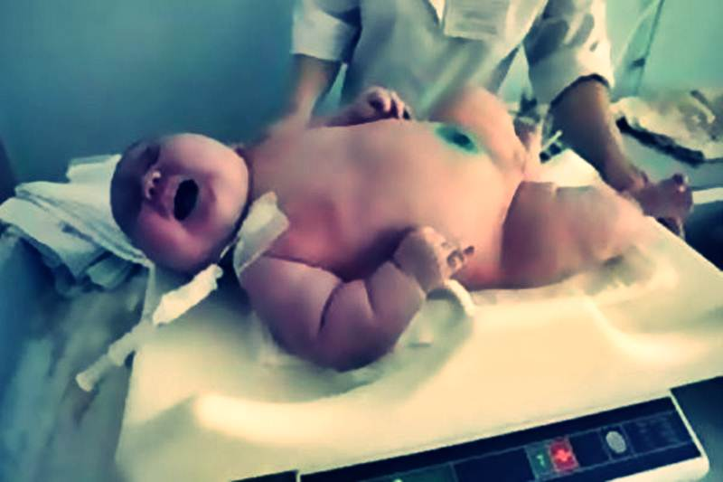 https://www.listeblogu.com/2019/02/tuhaf-sekilde-dunyaya-gelmis-5-bebek.html