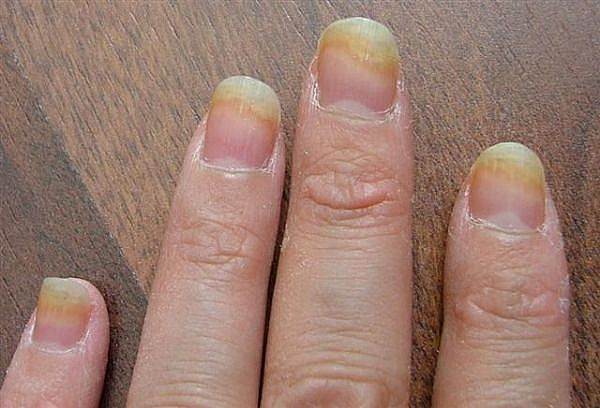 Heal Toenail Fungus - Treatment Reviews
