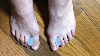 外反母趾を治すために、指の間に物を挟むのは足を痛めます。