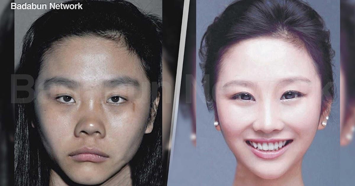 mujeres corea belleza cirugías plásticas coreanas