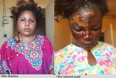 Woman Arrested In Lagos For Pouring Hot Water On Maid