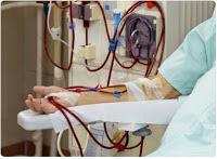 gagal ginjal harus cuci darah