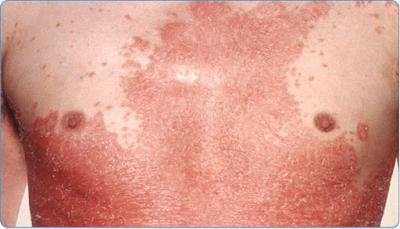 Pengobatan Kulit Bersisik, Kering Dan Gatal (Psoriasis)