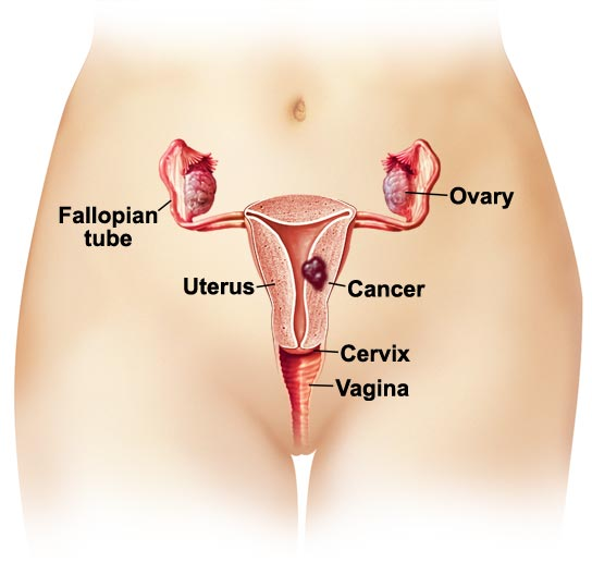 Uterine Cancer Causes and Treatment