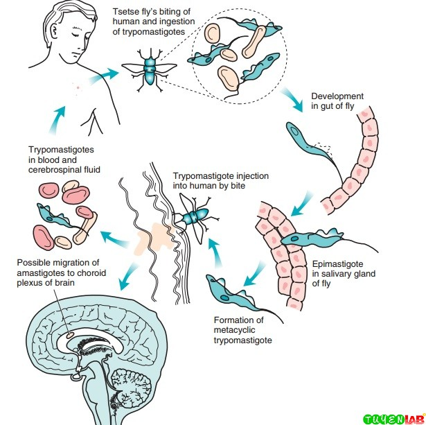 Life cycle of the agents of sleeping sickness (Trypanosoma brucei gambiense and Trypanosoma brucei rhodesiense).
