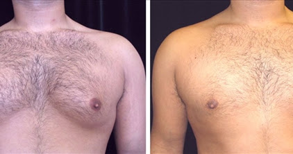 Regrowth of the Male Breast after Gynecomastia Surgery. Is Possible?