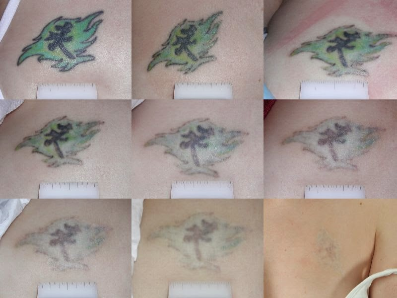 difuminado de un tatuaje con limon