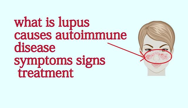 what is lupus causes autoimmune disease symptoms signs treatment