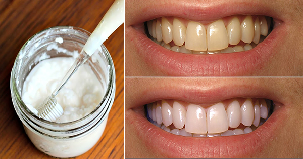 Want to Have A Whiter Teeth in Just One Minute?