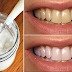 MUST READ: Want to Have A Whiter Teeth in Just One Minute?