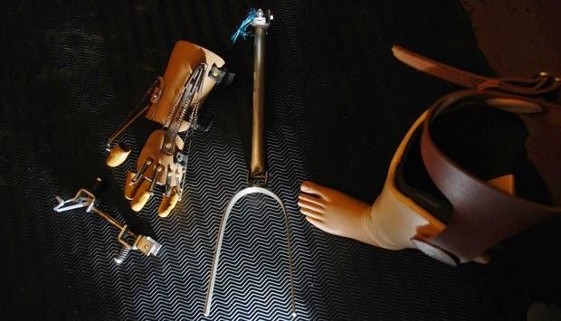 Prosthetic_limbs