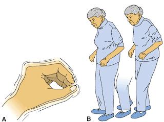 penyakit buyutan parkinson