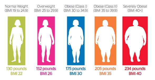 Titi Wati Tergolong Obesitas Morbid