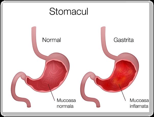Care sunt complicatiile gastritei? Ce simptome prezinta gastrita?