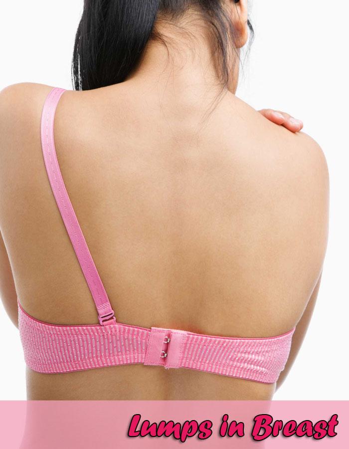 Lumps in Breast